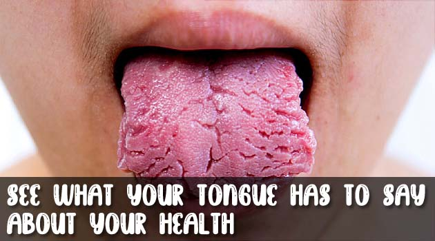 See What Your Tongue Has to Say About Your Health